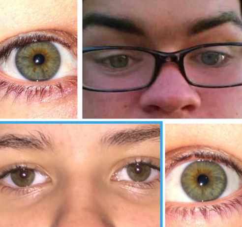 Heterochromia Project